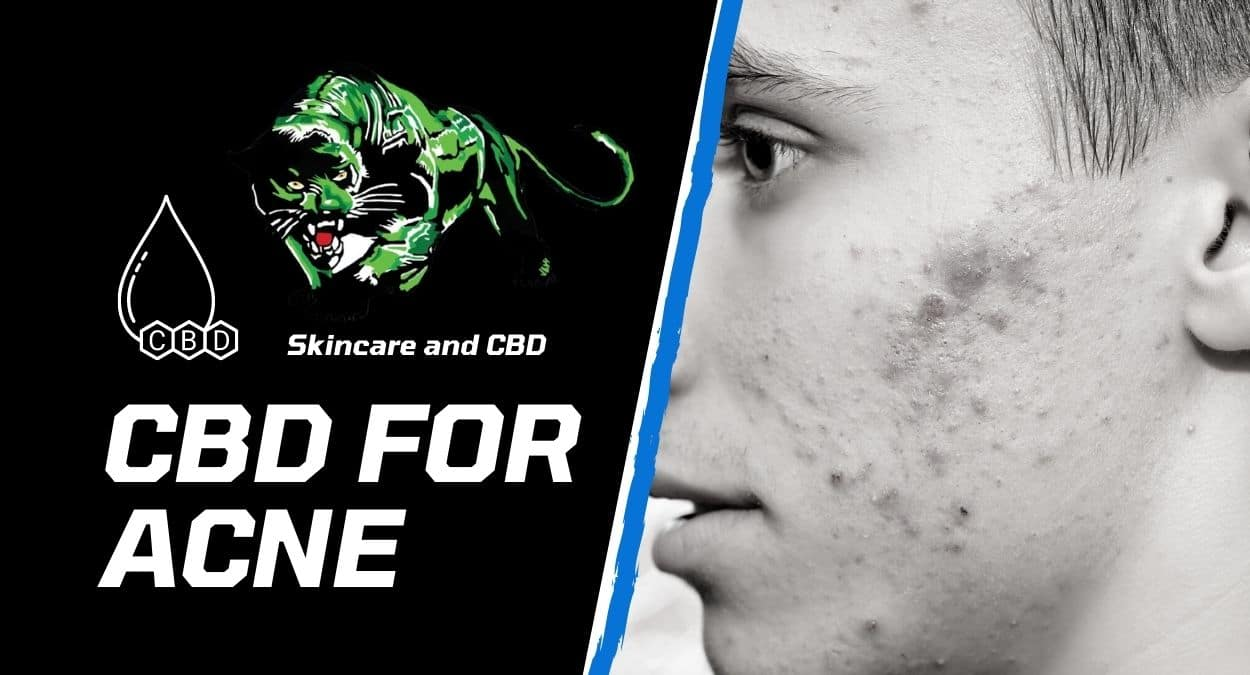 CBD For Acne – Why Are Experts Recommending It For  Removal And Care?